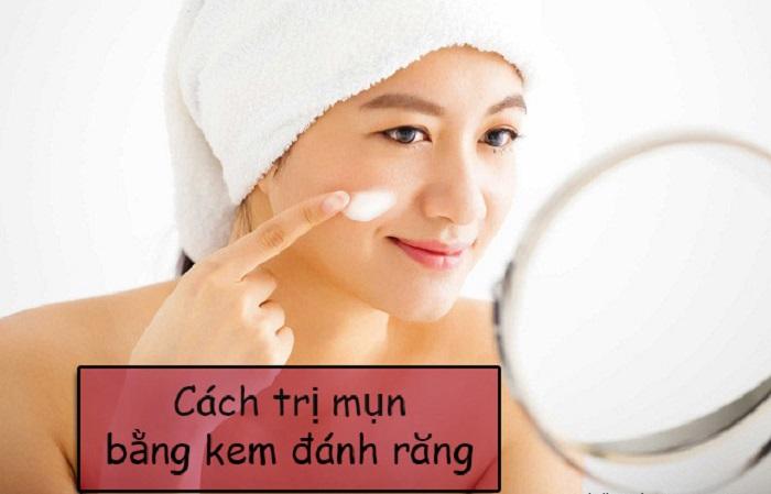 Cách trị mụn hiệu quả bằng kem đánh răng