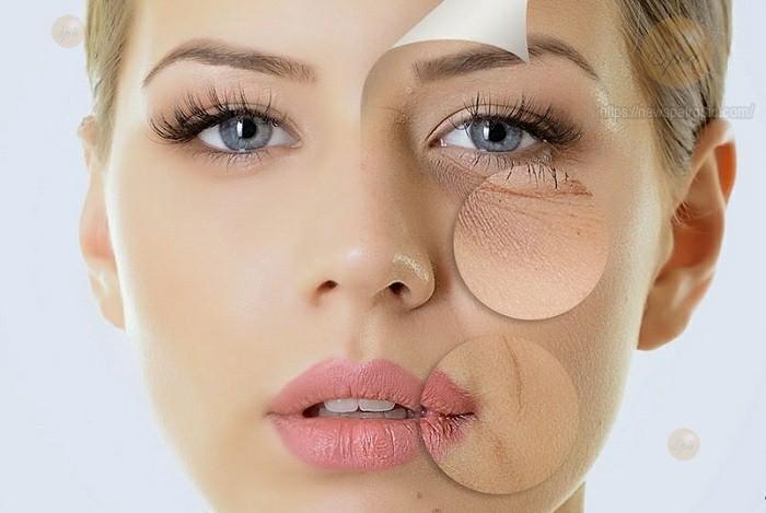 Đối tượng nên – không nên cấy chỉ căng da mặt bằng collagen?