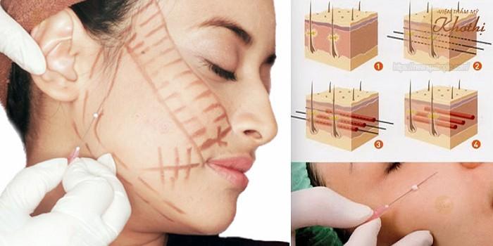 Căng da mặt bằng chỉ collagen là gì?