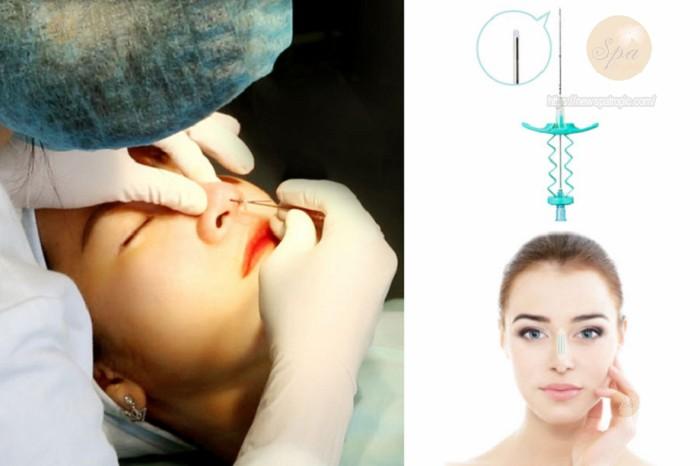 Nâng mũi không phẫu thuật ở đâu đẹp tại TpHCM?