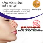 Nên nâng mũi ở đâu tại thành phố Hồ Chí Minh?