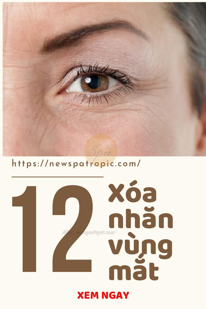 cách trị nếp nhăn dưới mắt