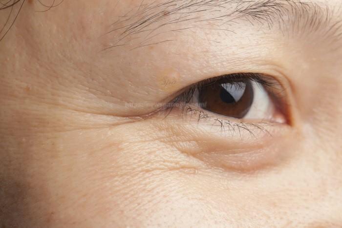 giảm nếp nhăn ở mắt