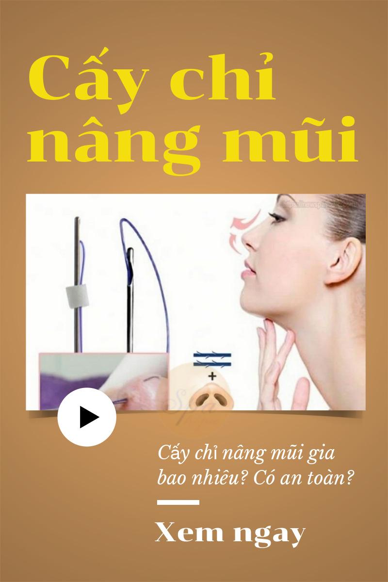 Phương pháp cấy chỉ nâng mũi là gì?