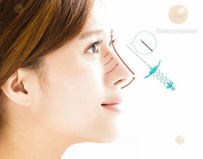 Nâng mũi bằng chỉ collagen có an toàn không?
