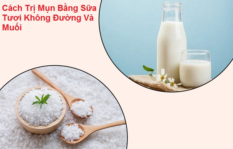 Cách trị mụn bằng sữa tươi không đường và muối hiệu quả tại nhà