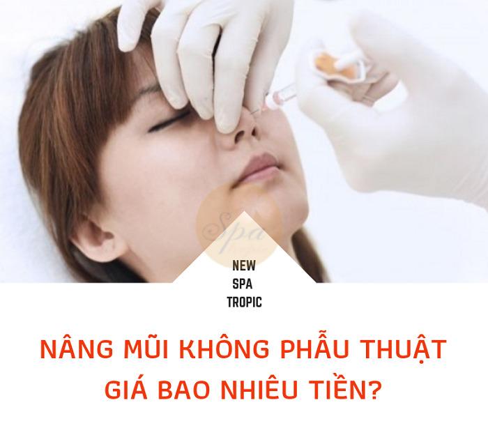 nâng mũi không cần phẫu thuật giá bao nhiêu