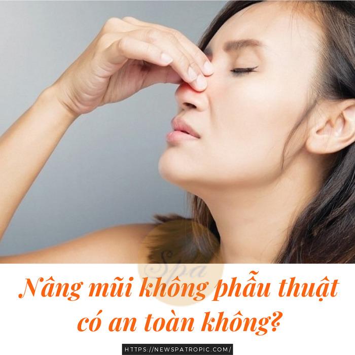 Nâng mũi không cần phẫu thuật có an toàn không