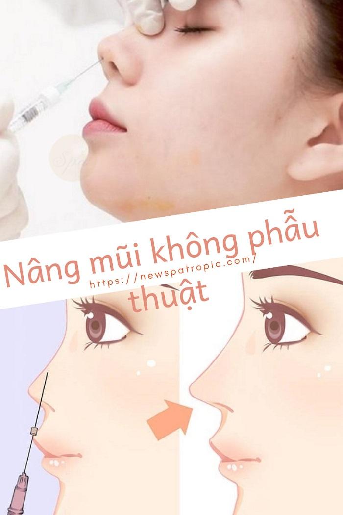 phẫu thuật nâng mũi không phẫu thuật ở đâu đẹp