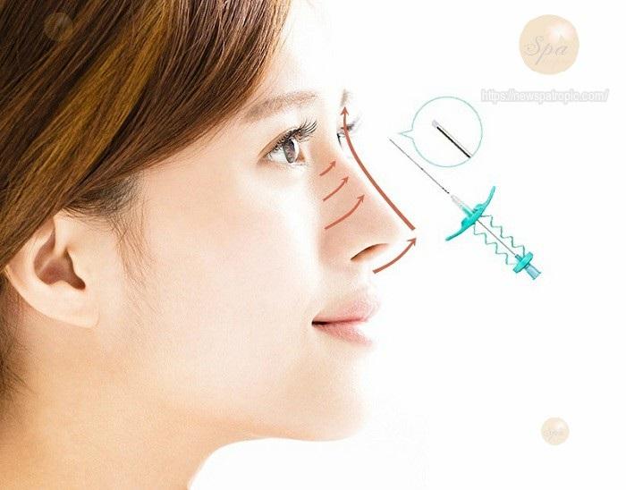 Nâng mũi bằng chỉ vĩnh viễn có thật không?