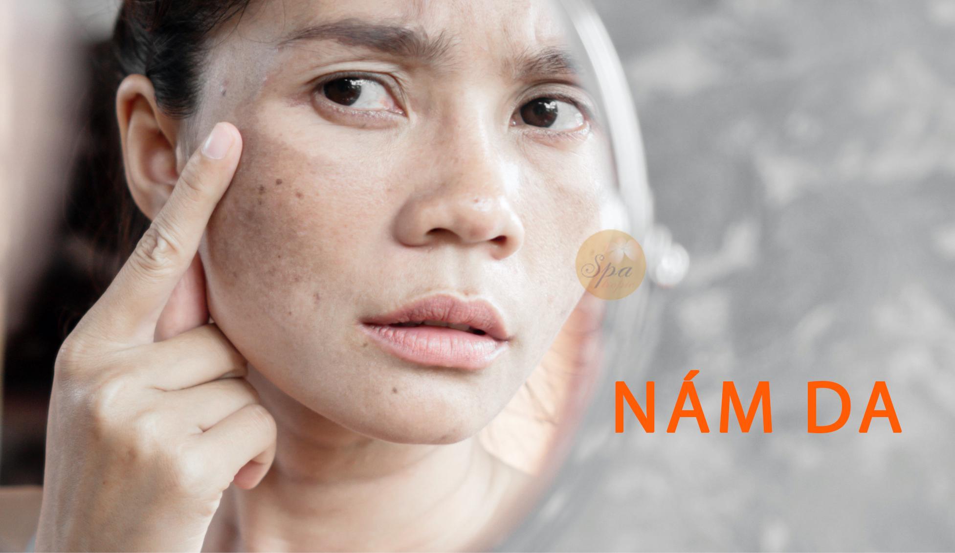 Nám da và nguyên nhân gây nám